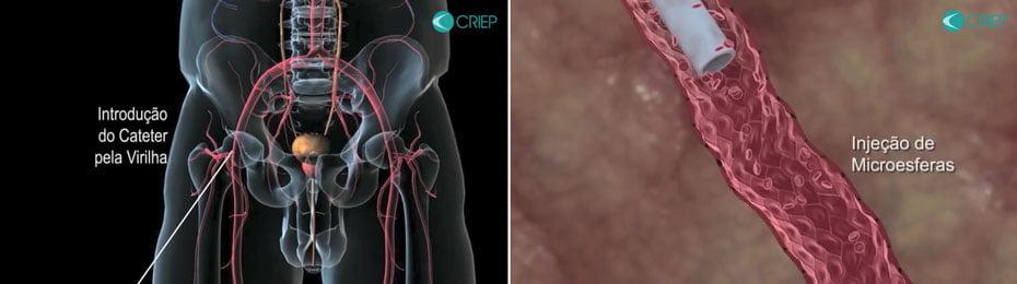 terror-dos-homens-com-mais-de-50-crescimento-da-prostata-tem-agora-alternativa-com-tratamento-minimamente-invasivo-02