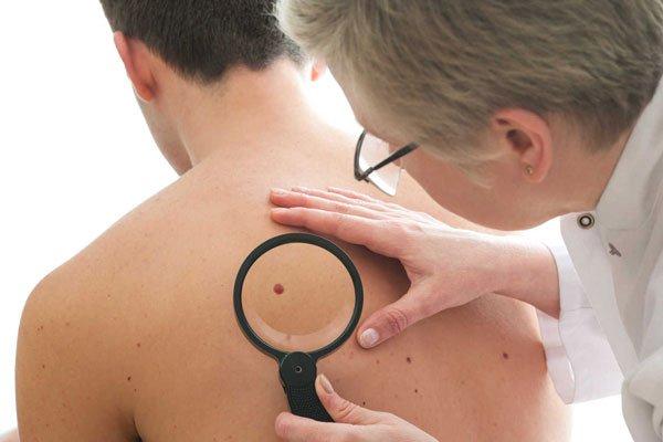 No verão é necessário redobrar os cuidados com a pele   Foto: Reprodução https://hippodrs.com.br
